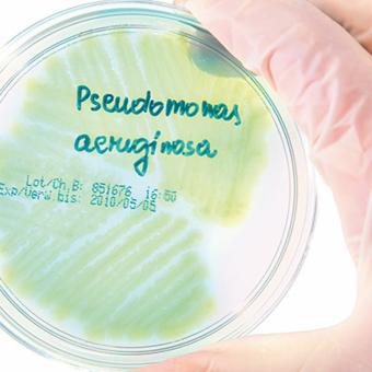 Le Pseudomonas aeruginosa